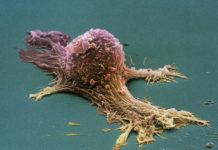 Cancro e tumori